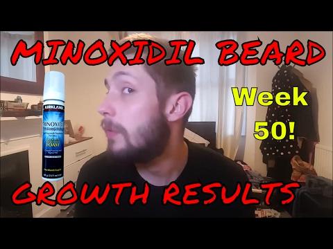Minoxidil Beard Growth Results | Week 50 | Minoxidil 5% for Beard Growth | #Facialfuzzfridays
