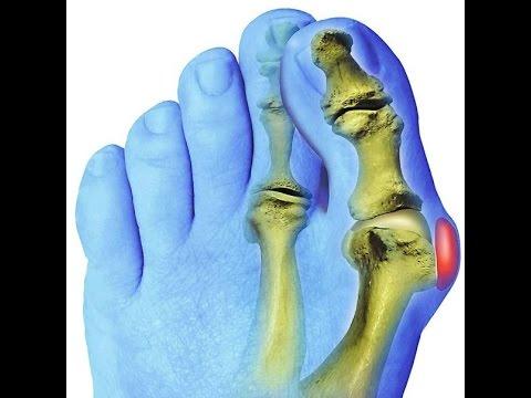Вальгусная деформация большого пальца стопы как лечить
