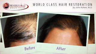 FUT female hair transplant surgery before and after video