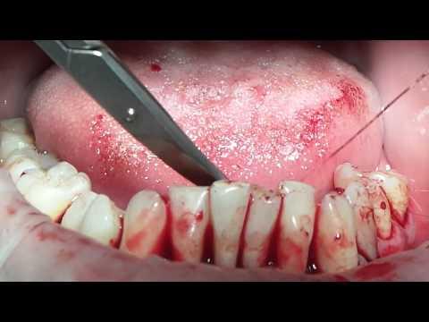 Хирургическое пародонтологическое лечение. Базовый курс. Часть 10