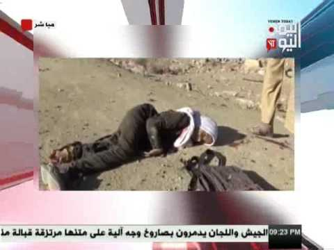 اليمن اليوم 26 2 2017