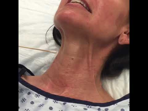 Botox injections to the neck for neck bands.