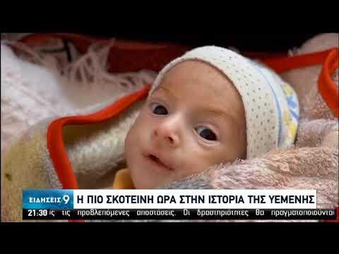 Τα παιδιά πληρώνουν το βαρύ τίμημα του πολέμου στην Υεμένη | 28/06/2020 | ΕΡΤ