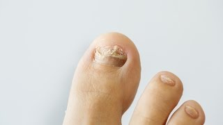 Six tips you can give your patients to prevent fungal toenail infections