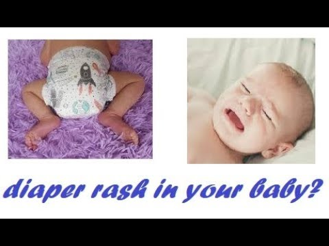 Diaper rash or diaper dermatitis