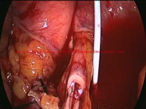 laparoscopic ureteral anastomosis