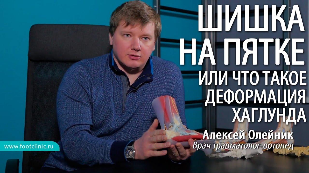 Шишка на ноге выше пятки, или что такое деформация Хаглунда - хирургия стопы Алексея Олейника