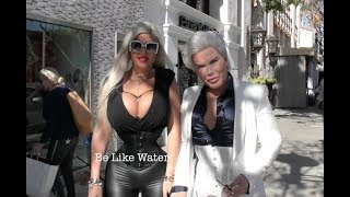 Human Ken Doll & Human Barbie Doll, Rodrigo Alves & Sophia Vegas give advice on Plastic Surgery