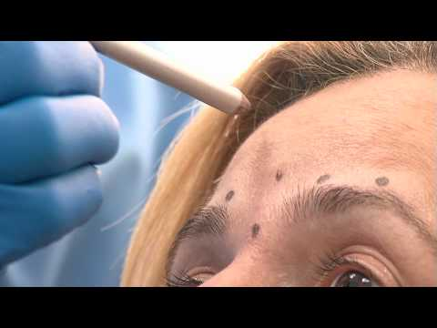 QClinic_Tratamentul cu botox.mpeg
