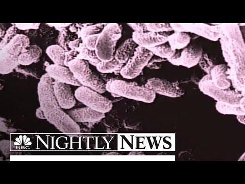 Army Mistakenly Shipped Live Anthrax Via FedEx | NBC Nightly News
