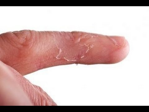 hands peeling for no reason