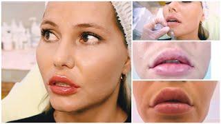 Увеличим губы и посмотрим результат (+Ботокс в лоб и уголки губ)