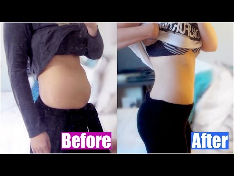 I HAD MY FAT FROZEN OFF! | Coolsculpting