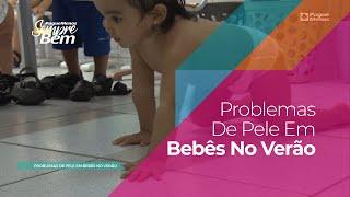 Problemas De Pele Em Bebês No Verão