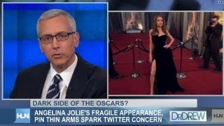 Dr. Drew On Angelina: 'I See Malnutrition'