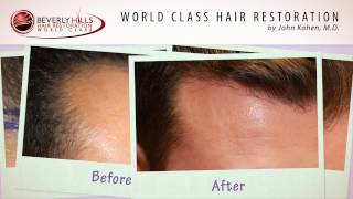 Beverly Hills Hair Restoration Natural Results Video