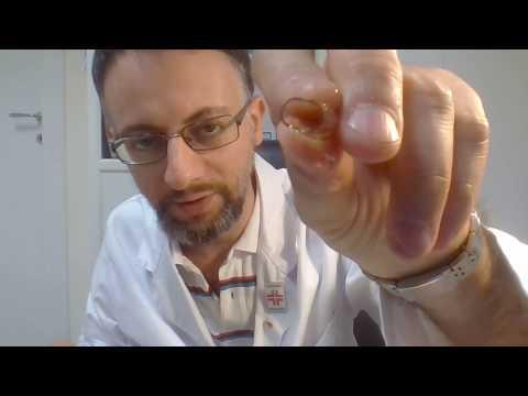 Apriamo insieme una gellula EPA, DHA e Vit E (Olio di pesce)