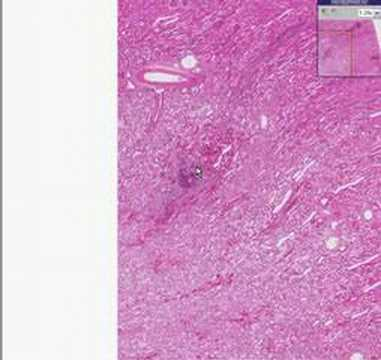 Histopathology Kidney–Bacterial endocarditis