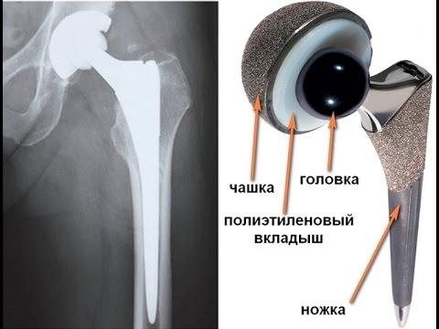 Эндопротезирование (замена) суставов  в Чехии
