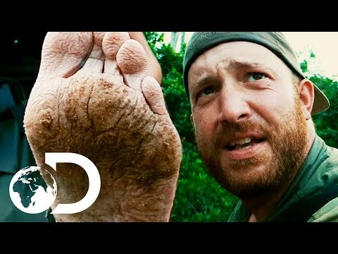 Disgusting Injuries And Getting Lost In The Jungle | Gold Rush: Parker's Trail