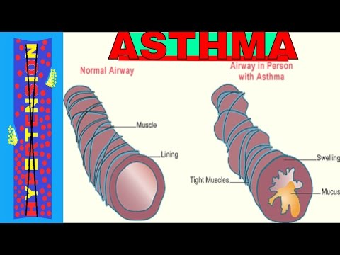 Studying Asthma and Status Asthmaticus in Nursing School