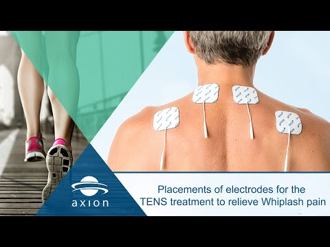 Placements of electrodes for the TENS treatment to relieve Whiplash pain