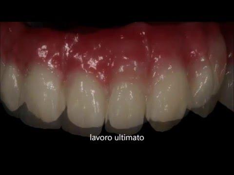 Studio Odontoiatrico dott. Pasqualino Abbadini | Alba Adriatica