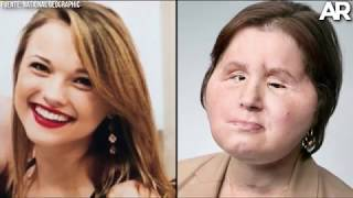 Un transplante de cara marca una vida para Katie Stubblefield