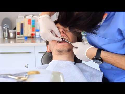 Ortodonti tedavi süresi ve sonrası