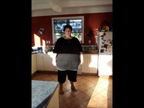Before and after pics of gastric sleeve surgery