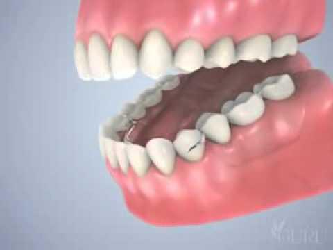 Prothèse dentaire partielle (partiel)