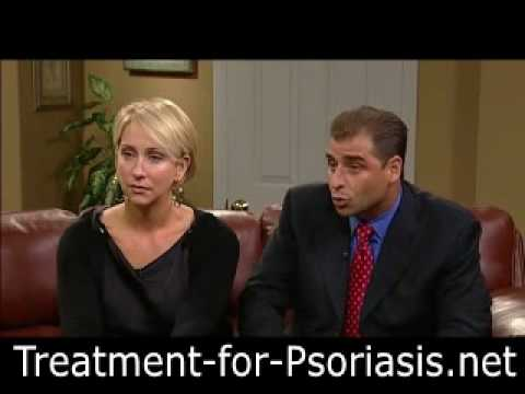 Treatment For Psoriasis - How My Mom Beat Psoriasis For Good