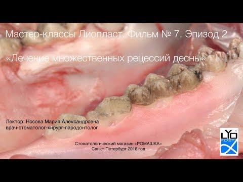 Мастер-класс Лиопласт 7.2 Хирургическое лечение множественной рецессии