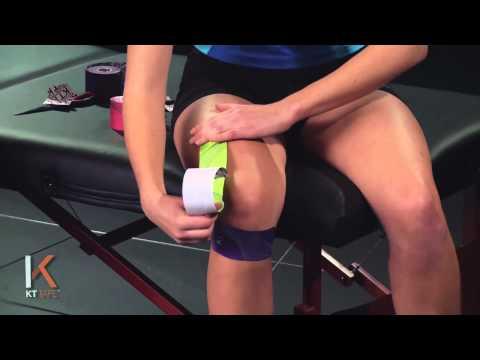【テーピング】 膝周辺の痛みに対処。