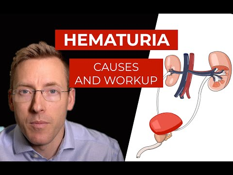 Hematuria: causes and evaluation of blood in your urine
