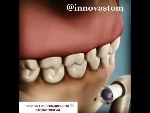 Профессиональная чистка зубов. Клиника Инновационной Стоматологии