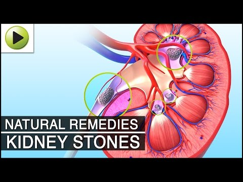 how to cure kidney stone naturally