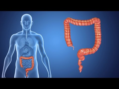 An Overview of Colorectal Cancer