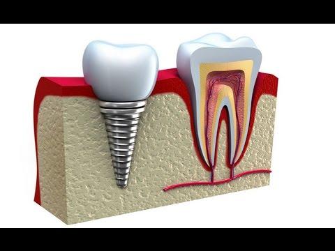 Виды стоматологически  имплантатов