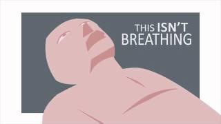 Recognizing Agonal Breathing