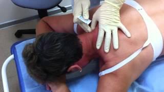 Как происходит лечение головной боли напряжения