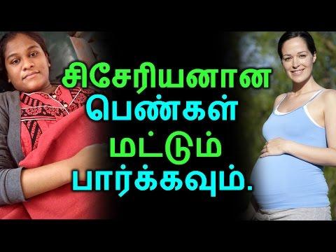 சிசேரியனான பெண்கள் மட்டும் பார்க்கவும் | Tamil Health Tips | Home Remedies | Latest News