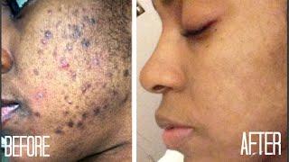 SKIN| How I Got Rid of Dark Scars (Hyperpigmentation) & Acne + GIVEAWAY!