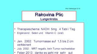 Chronický únavový syndrom a rakovina