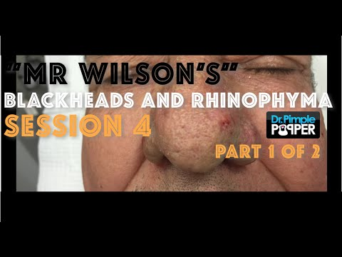 """Mr Wilson"": Part 1 of his 4th blackhead extraction & second electrosurgery sculpting treatment."