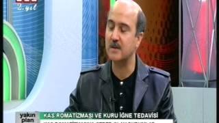 KAS ROMATİZMASI, FİBROMİYALJİ VE KURU İĞNE BEA-TV, DR. SERDAR SARAÇ