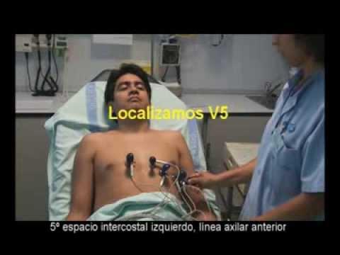 Cómo se hace un ECG