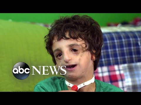 Boy living with Treacher Collins has 53 surgeries by age 11: 20/20 Part 2