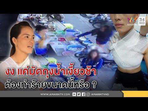 ทุบโต๊ะข่าว:แม่ค้าขนมจีน โชว์แผลเหวอะฝีมือสาวขี้วีนปาถุงน้ำเงี้ยวร้อนๆใส่ งงเหตุมัดถุงช้า09/11/60
