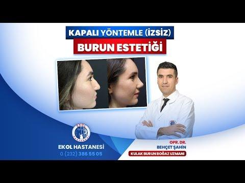 Kapalı Yöntemle (İzsiz) Burun Estetiği - Opr. Dr. Behçet Şahin - İzmir Ekol Hastanesi